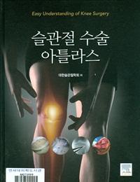 슬관절 수술 아틀라스 = Easy understanding of knee surgery