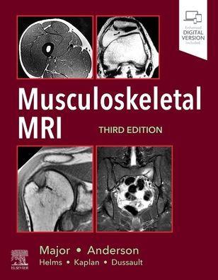 Musculoskeletal MRI [electronic resource]