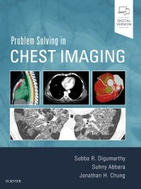 Problem solving in chest imaging [electronic resource]