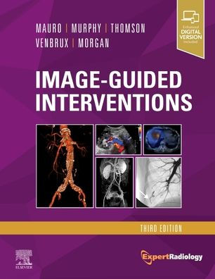 Image-guided interventions [electronic resource]