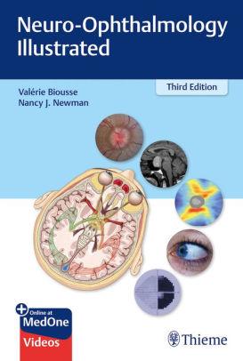 Neuro-ophthalmology illustrated [electronic resource]