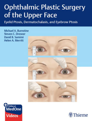 Ophthalmic plastic surgery of the upper face eyelid ptosis, dermatochalasis, and eyebrow ptosis /  [electronic resource]