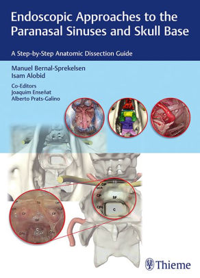 Endoscopic Approaches to the Paranasal Sinuses and Skull Base [electronic resource]