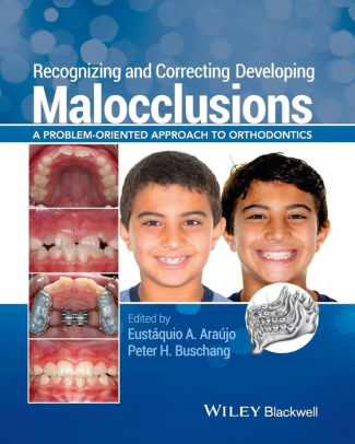 Recognizing and Correcting Developing Malocclusions : A Problem-Oriented Approach to Orthodontics [electronic resource]