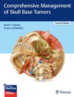 Comprehensive management of skull base tumors [electronic resource]