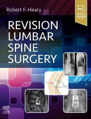 Revision lumbar spine surgery [electronic resource]