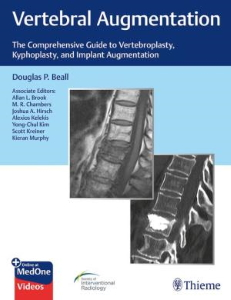 Vertebral Augmentation : The Comprehensive Guide to Vertebroplasty, Kyphoplasty, and Implant Augmentation [electronic resource]