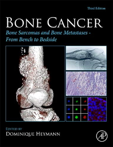 Bone cancer : bone sarcomas and bone metastases - from bench to bedside [electronic resource]