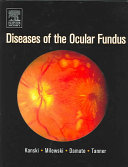 Diseases of the Ocular Fundus