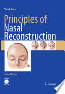 Principles of Nasal Reconstruction [electronic resource]