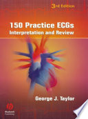 150 Practice ECGs : Interpretation and Review [electronic resource]