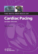 The Nuts and Bolts of Cardiac Pacing [electronic resource]