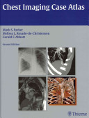 Chest Imaging Case Atlas [electronic resource]