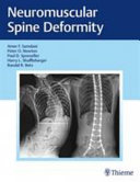 Neuromuscular Spine Deformity [electronic resource]