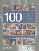 100 Hand Cases [electronic resource]