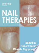 Nail Therapies [electronic resource]