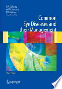 Common Eye Diseases and their Management [electronic resource]