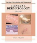 General Dermatology: an Atlas of Investigation and Management [electronic resource]
