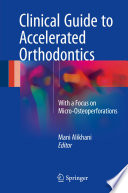 Clinical Guide to Accelerated Orthodontics With a Focus on Micro-Osteoperforations /  [electronic resource]