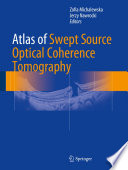 Atlas of Swept Source Optical Coherence Tomography [electronic resource]