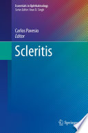 Scleritis [electronic resource]