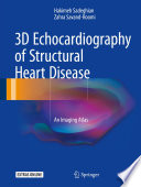 3D Echocardiography of Structural Heart Disease An Imaging Atlas /  [electronic resource]