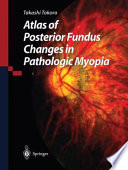 Atlas of Posterior Fundus Changes in Pathologic Myopia [electronic resource]