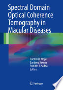 Spectral Domain Optical Coherence Tomography in Macular Diseases [electronic resource]