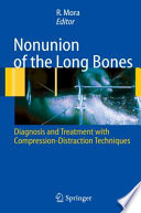 Nonunion of the Long Bones Diagnosis and treatment with compression-distraction techniques /  [electronic resource]