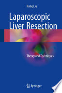Laparoscopic Liver Resection Theory and Techniques /  [electronic resource]