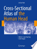 Cross-Sectional Atlas of the Human Head With 0.1-mm pixel size color images /  [electronic resource]